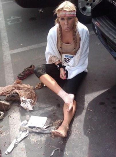 Gretchen_Rossi_injured_2011_mud_run